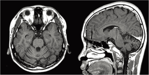 Brain MRI shows the diffuse atrophy in the cerebellum. Grossly normal pituitary gland.