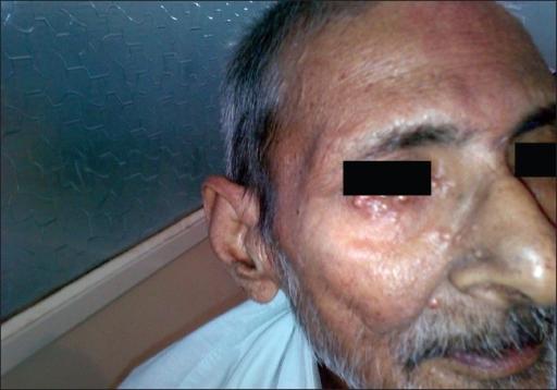 Figure 0006  Tuberous xanthomas on faceXanthomas Face