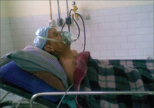 Patient in the recovery room. Due to the ankylosing spine, the patient's head is supported with two pillows and the head end of the bed is raised
