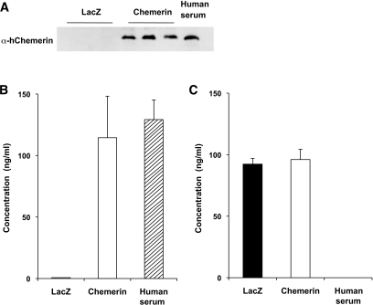 A: Western blot analysis of chemerin expression in serum samples of LDLRKO mice 16 weeks after injection with 1 × 1013 particles of AAV.lacZ or AAV.chemerin and a healthy human volunteer. B: Expression of chemerin in LDLRKO mice 16 weeks after injection with 1 × 1013 particles of AAV.lacZ or AAV.chemerin (n = 12 per group) and in 3 healthy human volunteers as assessed by ELISA. C: Murine chemerin levels in LDLRKO mice 16 weeks after injection with 1 × 1013 particles of AAV.lacZ or AAV.chemerin (n = 12 per group) as assessed by ELISA.