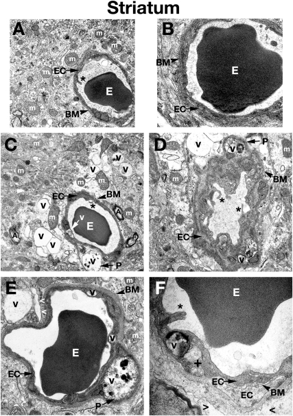 Electron microscope examination of the striatum of Naglu mutant mice.(A) Structural integrity of capillaries in the striatum was normal in C57 BL/6J control mice. (B) A single layer of endothelial cells surrounded by a layer of basement membrane in control mouse seen at high magnification. (C), (D) Edematous space and large vacuoles are indicated around vessels. Vacuolated pericytes can be seen in the striatum of early symptomatic Naglu mice. (E) Large vacuoles were found in endothelial cells and pericytes of late symptomatic animals. (F) A high magnification image of a capillary from the striatum of a 6 month old mutant mouse showing an endothelial cell with endoplasmic reticulum swelling and formation of a large vacuole in its cytoplasm. Edematous space has appeared around the capillary. Multiple layers of endothelial cells and basement membrane can be observed here, indicating a reparative process taking place. The luminal endothelial cells are damaged. EC - endothelial cell, BM - basement membrane, E – erythrocyte, m – mitochondrion, A – axon, P – pericyte, PM – perivascular macrophage, Nu – nucleus, V – vacuole, + - swollen endoplasmic reticulum, asterisks - microvilli, > - extracellular edematous space. Magnifications: (A), (C): 7,100x; (B), (E): 14,000x; (D): 8,900x; (F): 28,000x.
