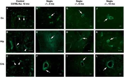 Immunohistochemical staining of albumin in the brains of Naglu mice.Albumin immunostaining can clearly be seen within the blood vessels (A, B, C, green, arrowheads) of control C57 BL/6J mouse at 12 months of age. In Naglu mice, albumin extravasation (green, arrows) can be seen in various brain structures (D, E, F) at early (3 months of age), (G, H, I) at late (6 months of age), and (J, K, L) end stages of disease (10 months of age). Cx – cerebral cortex, Hip – hippocampus, Crb – cerebellum. Scale bar in A through L is 25 µm.