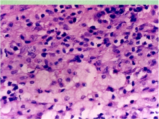 Foamy histiocytes in higher power view (case 1).