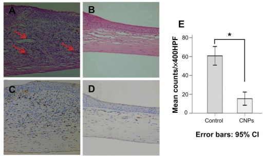 Celastrol nanoparticles inhibit neovascularization and macrophage infiltration in rat cornea. Rats were treated with celastrol nanoparticles (0.544 mg per rat) on day 0 and day 3 after surgery. Corneal tissue was fixed in 10% neutralized buffered formaldehyde, and 5 μm paraffin sections were stained with hematoxylin and eosin. (A) Celastrol nanoparticle-treated group showed significantly inhibited neovascularization and inflammatory cell infiltration in cornea on day 6 after surgery when compared with (B) the control group. Red arrows show new blood vessels. Corneal sections were processed by anti-rat CD68 staining in (C) celastrol nanoparticle-treated group and (D) the control group. Celastrol nanoparticles suppressed macrophage infiltration in the cornea on day 6 after surgery. The number of infiltrated macrophage (CD68+) cells in the corneal stroma was counted in five randomly selected fields (×400) of the immunofluorescence-stained slides.Notes: The number of infiltrating macrophages was analyzed by IBM SPSS (v 16.0; SPSS Inc, Chicago, IL). The data are presented as mean ± standard deviation (magnification: ×100). Statistical significance is based on the difference when compared with the control; *P < 0.001.Abbreviation: CI, confidence interval.