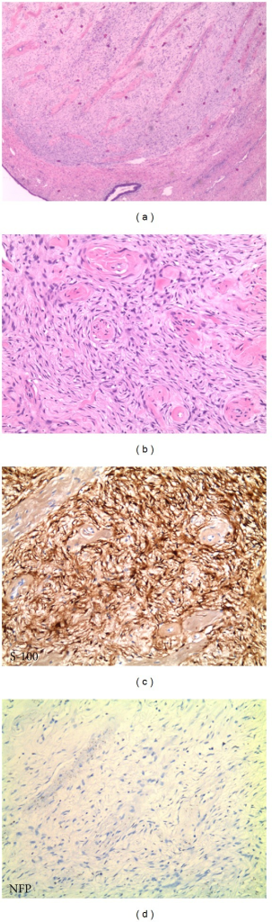 (a) Low-power view (2.5x) of the lesion showing a well-circumscribed mass with spindle cell proliferation and thick-wall hyalinized blood vessels. (b) Higher power view (10x) of the lesion. (c) Spindle cell component with strong S-100 immunoreactivity (10x). (d) Negative stain for NFP (10x).