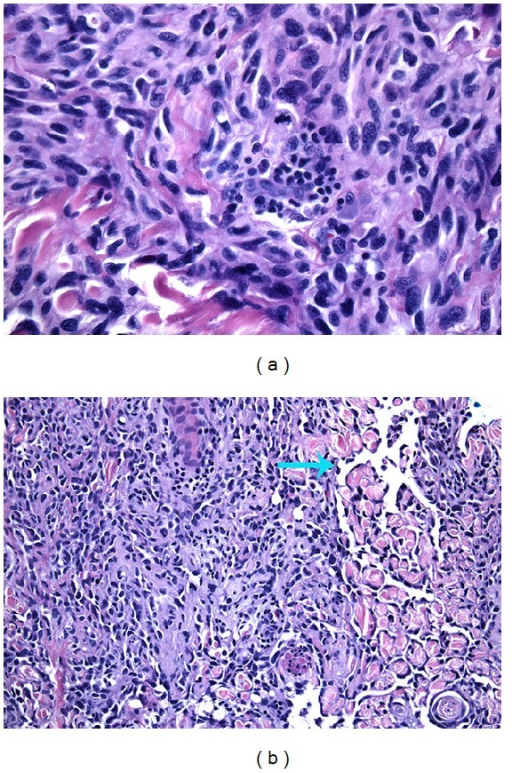 "The main tumor was bulky and composed of atypical and pleomorphic spindle cells with numerous mitotic figures (a). On the periphery of the tumor, areas of vessel formation with hyperchromatic and ""hob-nailing"" (blue arrow) of the neoplastic endothelium were seen (b)."