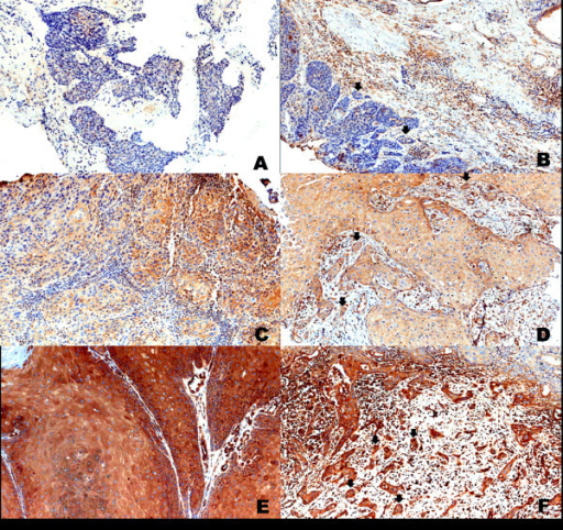 Immunohistochemical staining of ROCK1 in vulva carcinoma. Representative image of weak-positive staining in central tumour (A) and invasive front (B, arrows); moderate staining in the central tumour (C) and invasive front (D, arrows); strong-positive staining in central magnification. Images A and B were captured at 200× magnification. Images C, D, E, and F were captured at 400× magnification.