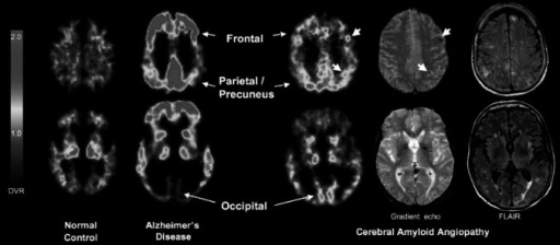 Representative 11C-PIB PET images at two transaxial levels from normal control (NC) (11C-PIB-negative), Alzheimer's disease (AD), and cerebral amyloid angiopathy (CAA) subjects. Compared with AD and NC, CAA subjects had an intermediate level of global 11C-PIB retention, but compared with AD, had relatively increased occipital retention. Microbleeds seen in this patient, shown in coregistered gradient echo magnetic resonance images, at times appear proximal to foci of amyloid deposition (small arrows). Reproduced from Ann Neurol, Johnson et al. [34] ©2007 with permission from the American Neurological Association