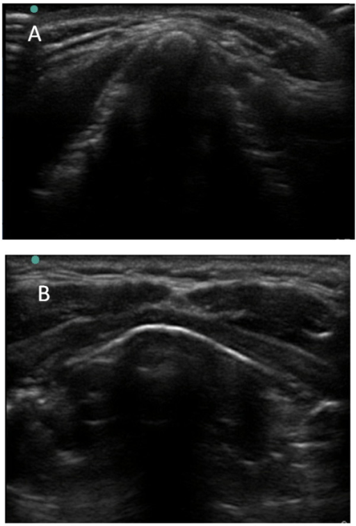 Image of thyroid cartilage using ultrasound in the transverse plane. The subject in panel A is male and is panel B is female.
