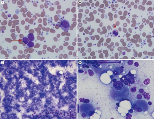 The findings of the peripheral blood (PB) smear and bone marrow (BM) aspiration. The PB smear shows leukemic blasts (horizontal arrow) (A). Dysplastic features were found on the PB smear such as marked anisopoikilocytosis in red blood cells (RBCs), pseudo-Pelger-Huet-like neutrophils (vertical arrow), and extreme thrombocytosis with giant and large platelets (B). The BM aspirate smear shows that hematopoietic components are barely visible owing to extreme thrombocytosis (C) and micromegakaryocytes display dyspoietic features of binucleation or non-lobulated shapes (D). Wright-Giemsa; ×200 (C), ×1,000 (A, B, D).