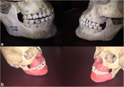 The photograph of the skulls (a) with defects, (b) and with wax covered to simulate the soft tissue