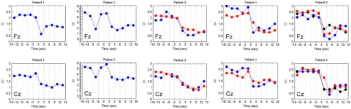 The variations of complexity index (CI) in different time period for five patients.Variations of CI at channels Fz and Cz in different time periods for five patients showed consistent CI changes in different seizures during the ictal states for the same patient. In contrast, the CI changes in different patients were not consistent. The different colors represented different seizure episodes in the same patients.
