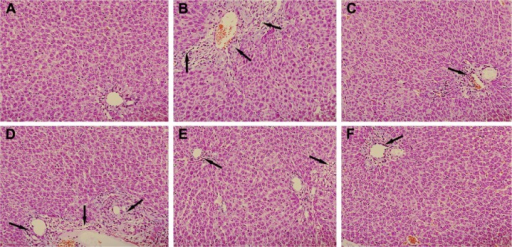 Effect of PLP on histological changes in the liver tissue of ANIT-induced rats.Notes: Rats were treated with different doses of PLP. It represented different effects with histological changes. Damage to hepatocytes is pointed by black arrows. (A) Control; (B) ANIT; (C) UDCA; (D) PLP 20 g/kg; (E) PLP 40 g/kg; and (F) PLP 80 g/kg. (HE stained, 200× magnification).Abbreviations: PLP, Paeonia lactiflora Pall.; ANIT, alpha-naphthylisothiocyanate; UDCA, ursodeoxycholic acid; HE, hematoxylin-eosin.