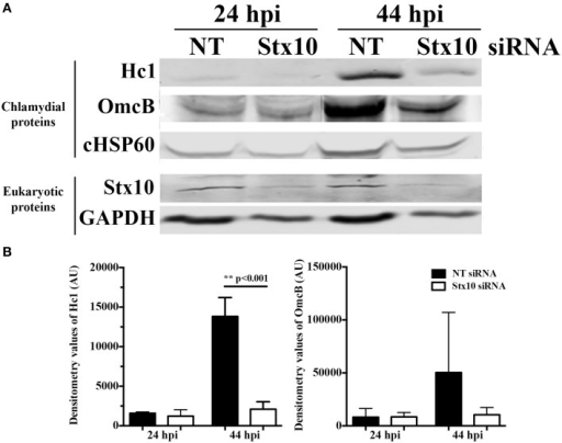 Effect of siRNA knockdown of syntaxin 10 on expression of late chlamydial proteins: Hc1 and OmcB. Syntaxin 10 or non-targeting (NT) siRNA-treated HeLa cells were infected with C. trachomatis serovar L2 for 24 or 44 h, prior to lysis in Laemmli sample buffer. (A) Equal amounts of protein were loaded onto SDS-PAGE gels and transferred prior to Western blot analysis using antibodies against chlamydial proteins Hc1, OmcB or chlamydial heat shock protein 60 (cHSP60) or eukaryotic proteins syntaxin 10 and GAPDH. The Western images shown are representative of two independent experiments. (B) Densitometry analysis was performed on the two independent experiments referred to in (A). These values [expressed in arbitrary units (AU)] were obtained using the Image Studio imaging software associated with the LI-COR Odyssey Infrared Imaging System and then graphed as mean and standard error of the mean. Statistical analysis included an ordinary One-Way ANOVA with Tukey's multiple comparison test in GraphPad Prism 6 software.