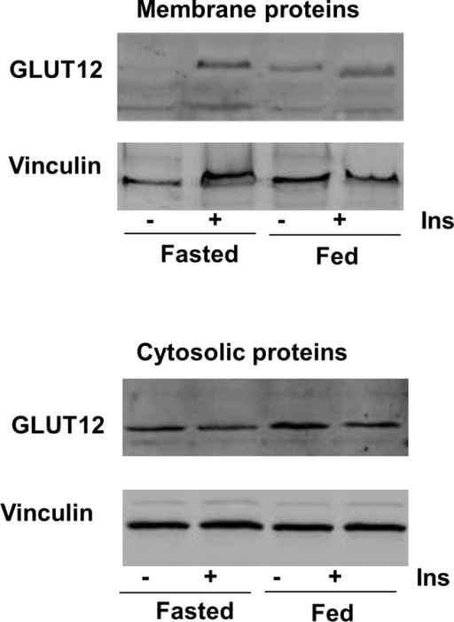 GLUT12 translocation after insulin stimulation.In the upper part, a representative Western blot shows GLUT12 content in membrane fractions prepared from leg muscle of fasted and fed animals without insulin injection or 1hr after insulin injection (1U/kg). In the lower part, a representative Western blot shows GLUT12 content in the corresponding cytosolic proteins used as a control of the cytosolic GLUT12 content. Vinculin was used as a loading control for the two fractions.