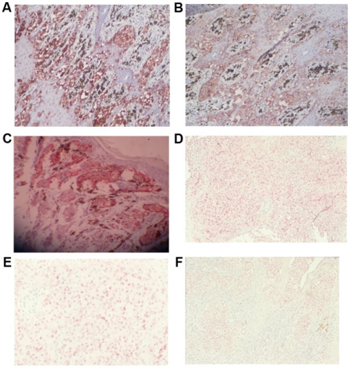 Expression of S100 protein, HMB-45, and MITF in MM and pigmented nevus samples. (A) S100 protein in MM (+++; magnification, ×200); (B) HMB-45 in MM (magnification, ×400); (C) HMB-45 in Spitz nevus (+++; magnification, ×200); (D) MITF in MM (+; magnification, ×100); (E) MITF in metastatic MM (+; magnification, ×100); (F) MITF in Spitz nevus (+; magnification, ×100). MITF, microphthalmia transcription factor; MM, malignant melanoma.