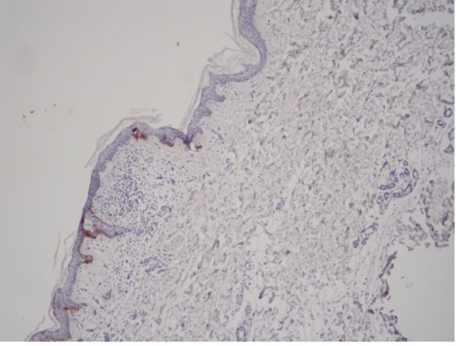 HMB-45 expression in normal Langerhans cells without skin damage caused by melanoma (magnification, ×400).