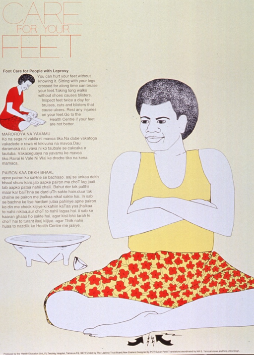 <p>Pale yellow poster with red and black lettering.  Title in upper left corner, along with an illustration of a person inspecting its feet.  Caption below title on left side of poster.  Two additional paragraphs below caption, in Fijian (?), appear to translate and expand on the caption.  Dominant visual image is an illustration of a person sitting cross-legged, with arrows and jagged lines pointing to the person's feet.  A basin for washing feet sits nearby.  Publisher and sponsor information at bottom of poster.</p>