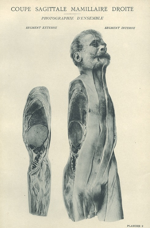 <p>Image of right side of man's body showing internal and external segments of the mammary glands. Issued in seven installments by the flamboyant Parisian surgeon Eugene-Louis Doyen (1859-1916), this atlas of 279 &quot;heliotyped&quot; photographic plates of cross-sectioned bodies was a radical departure from past practice. Atlas d'anatomie topographique, Planche 2.</p>