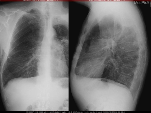 CXR:  Large destructive left apical mass involving the chest wall.  There is vertebral destruction, pleural metastasis, lymphadenopathy, and a contralateral lung nodules.