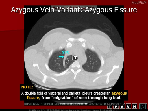 Non-contrast CT through the area of mediastinal widening demonstrates an azygos lobe with invagination of the pleura, creating an azygous fissure.