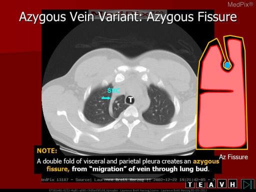 Non-contrast CT through the area of mediastinal widening demonstrates an azygos lobe with invagination of the visceral pleura.
