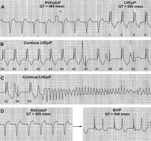 Changes in QT interval, R-on-T ventricular extrasystoles and the development of torsade-de-pointes ventricular tachycardia in response to pacing at different sites. After switching from right ventricular endocardial pacing (RVEndoP) to left ventricular epicardial pacing (LVEpiP), the QT interval increased. Continued LVEpiP led to ventricular extrasystoles (B) and, eventually, to torsade-de-pointes ventricular tachycardia (C). Switching from RVEndoP to biventricular pacing (BiVP) led to an increase in the QT interval duration and to the emergence of R-on-T ventricular extrasystoles. Reproduced with permission from Lippincott Williams  & Wilkins [7].