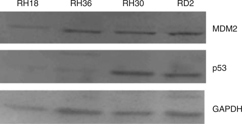 Baseline levels of MDM2 and p53 expression in wild-type p53, RH18 and RH36, and mutant p53, RH30 and RD2, rhabdomyosarcoma cells.