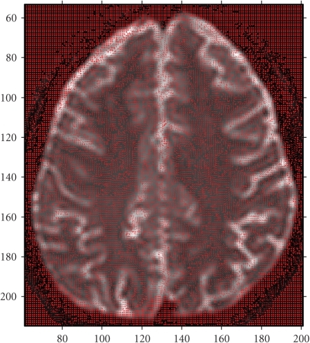 Calculated principal eigenvectors of the entire slice superimposed on axial brain MR image.