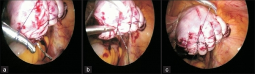 Intracorporeal ipsilateral suturing of incision on uterus