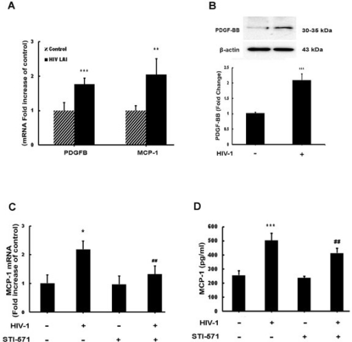 HIV-1 induces platelet-derived growth factor (PDGF)-B and monocyte chemoattractant protein 1 (MCP-1) mRNA and protein expression in astrocytes. (A) HIV-1 LAI induced PDGF-B chain and MCP-1 mRNA expression in human A172 astrocytes. Total RNA isolated from human A172 astrocytes was subjected to real-time reverse-transcriptase polymerase chain reaction (RT-PCR) analysis using primers specific for human PDGF-B, MCP-1 and 18S. (B) HIV-1 LAI induces PDGF-BB protein expression in human A172 astrocytes. Protein lysates isolated from astrocytes exposed to HIV-1 were subjected to western blot analysis and analyzed for expression of PDGF-BB protein. (C) HIV-1 LAI induces MCP-1 mRNA levels. Total RNA isolated from human A172 astrocytes was subjected to RT-PCR analysis using primers specific for human MCP-1 and 18S. (D) HIV-1 LAI induces MCP-1 protein expression in human A172 astrocytes. Supernatants from astrocytes exposed to HIV-1 for 24 h were subjected to MCP-1 enzyme-linked immunosorbent assay (ELISA) analysis. All the data are presented as mean ± SD of three individual experiments. *P <0.05, **P <0.01, ***P <0.001 versus control group; ##P <0.01 versus HIV-1-treated group.