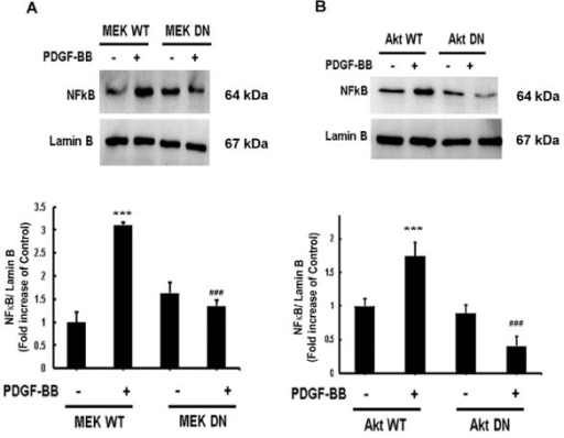 Mitogen-activated protein kinase (MAPK) and phosphatidylinositol 3-kinase (PI3K)/Akt cell signaling pathways lie upstream of platelet-derived growth factor (PDGF)-BB induced nuclear factor κB (NFκB) in astrocytes. The nuclear fractions of A172 cells transfected with wild-type (WT) or dominant-negative (DN) forms of mitogen-activated protein (MAP) kinase kinase (MEK) and Akt were subjected to western blot analysis for NFκB. (A) Transfection with DN-MEK but not WT-MEK resulted in abrogation of PDGF-BB-mediated induction of NFκB phosphorylation. (B) Transduction with DN-Akt but not WT-Akt also resulted in abrogation of PDGF-BB-mediated induction of NFκB phosphorylation. All the data are presented as mean ± SD of three individual experiments. ***P <0.001 versus control group, ###P <0.001 versus PDGF-BB-treated group.