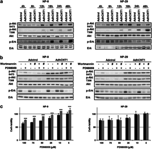 hCNT1 overexpression activates Akt and Erk. NP-9 and NP-29 cells were infected with AdhCNT1 or Adctrol at an MOI of 10. (a) The time-course of Akt and Erk phosphorylation was analysed in total cell extracts by western blotting using the indicated antibodies. (b) Infected NP-9 and NP-29 cells were treated with 50 μℳ PD98059 (MEK inhibitor) or 20 nℳ (+) or 100 nℳ (#) wortmannin (PI3K inhibitor) for 48 h. Total-cell lysates were analysed by immunoblotting with the indicated antibodies. (c) After infection with Adctrol (black bars) and AdhCNT1 (gray bars), NP-9 and NP-29 cells were treated with different concentrations of PD98059 and cell viability was assessed by MTT assay 72 h later. Data are expressed as percentage of viable cells relative to Adctrol- or AdhCNT1-infected cells. Results are means±S.E.M. (n=3). Statistical significance was determined with Student's t-test; ***P<0.005