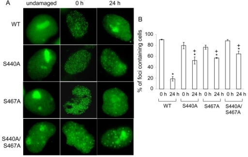 WRN but not phosphorylation mutant relocalizes to the nucleoli post etoposide exposure(A) AG11395 cells overexpressing either EGFP-WRN wild type (WT) or mutant (S440A, S467A or S440A/S467A) were incubated with 35 μM etposide for 3 hours. Cells were fixed and EGFP signals were visualized before and after incubation for another 24 hours in fresh medium. Representive images are shown. (B) The percent of cells containing WRN foci. At least 100 cells were scored at each time point. The average of three independent experiments with standard deviation is plotted. Asterisks (*) indicate significant difference between 0 h and 24 h (p<0.05). Plus (+) indicate significant difference between Wild type and mutants.