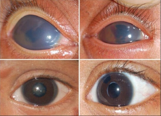 From top left, corneal edema right eye; top right: Hyphema after resolution of corneal edema left eye; bottom left: Development of cataract; bottom right: After cataract extraction