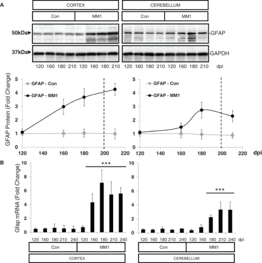 Region-specific expression of glial cell markers in sCJD MM1 mouse model is shown. (A) Western blot analysis of GFAP in the cortex and cerebellum of control and sCJD MM1 mice at different dpi. A 10−1 inoculum dilution was performed in animals sacrificed at 210 dpi. qPCR analysis of (B) Gfap, (C) lif and Cntf, and (D) Iba1 in the cortex and cerebellum of control and MM1-inoculated mice at different dpi. 10−1 and 10−2 inoculum dilutions were performed in animals sacrificed at 210 and 240 dpi, respectively. Values are normalized using Xpnpep1 as internal controls. Between three and six animals were analyzed for each time-point and condition. Note increased expression of these markers with disease progression. Data are represented as the mean SEM. *p < 0.05, **p < 0.01, ***p < 0.001 compared with control cases (Tukey's post hoc test).