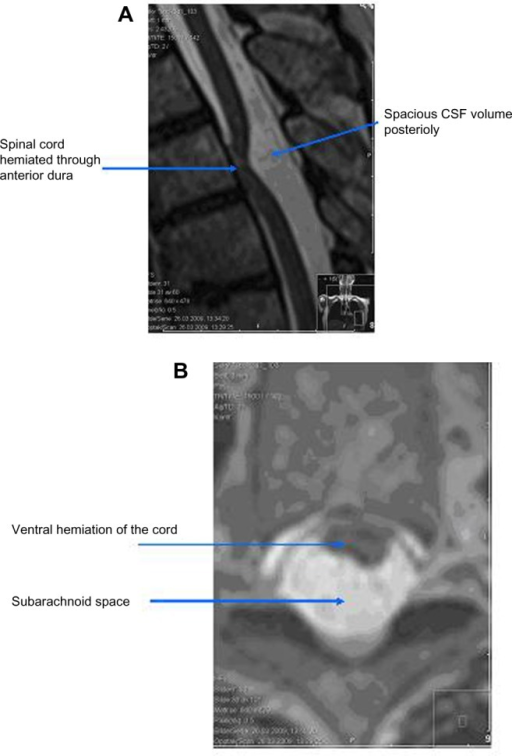 Preoperative MRI studies obtained in the thoracic spine of a 56-year-old woman who presented with a Brown-Séquard syndrome (case 4). (A) sagittal T2-weighted image shows that the spinal cord is ventrally dislocated in the spinal canal at the level of T5 with a spacious CSF volume posteriorly. (B) axial T2-weighted image at the level of T5 demonstrating a ventral adhesion with soft tissue outside the dura strongly indicating herniation of the spinal cord.
