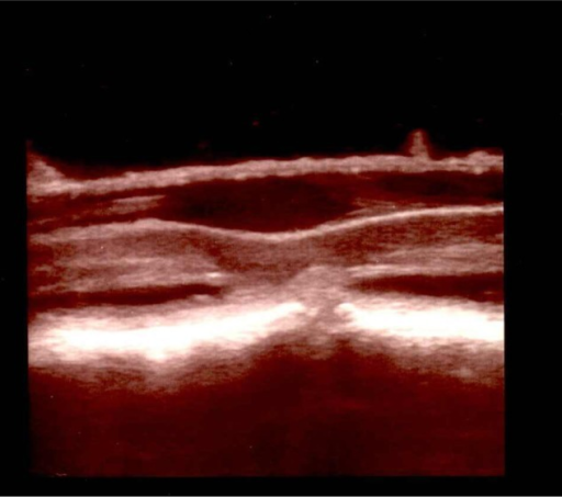 Intraoperative ultrasound image shows a ventral herniation of the spinal cord (arrow) and enlargement of the dorsal subarachnoid space.