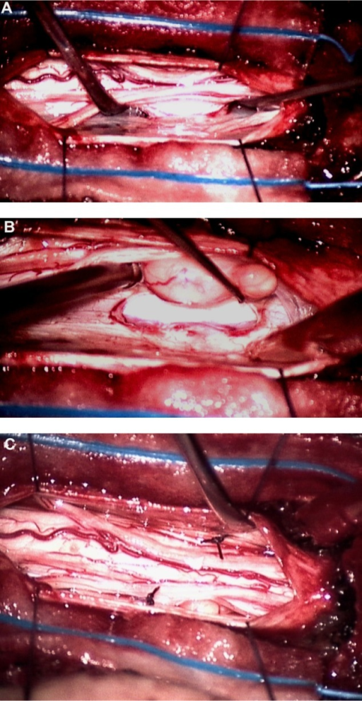 Intraoperative view: (A) before surgical reduction shows the ventral spinal cord incarcerated in a sharp oval dural defect. (B) the herniated lobule has been reduced against the major cord surface, but the lobule does not flatten into the cord. (C) a synthetic dural patch has been placed ventral to the spinal cord and secured with stitches on both sides.