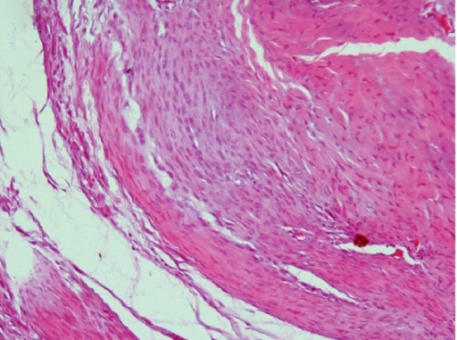 Photomicrograph of a knee joint from an osteoarthritic-induced rat model, showing widening in the space of the joint compared to normal, with the presence of fine collagenous fibers. The upper surface of the cartilage is rough because of the presence of fibrous tissue. The main bulk of the cartilage is formed of chondroblasts (H&E stain, ×100).Abbreviation: H&E, Haematoxylin & Eosin.