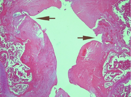 Photomicrograph of a knee joint from a rat treated with indomethacin, showing severe irregularity in the upper surface of the cartilage making notches (arrow) at the left side; the right side shows ulceration of the cartilage with granulation tissue filling the gap. The thickness of the cartilage is not uniform (H&E stain, ×100).Abbreviation: H&E, Haematoxylin & Eosin.