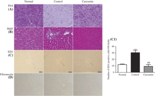 Effect of curcumin on histopathological changes. Histological staining with PAS in liver (A) shows that glycogen contents of rat liver decreased in diabetic animals when compared with those of normal control animals, but these levels increased to near normal after treatment with curcumin. In H&E, (B) light microscopic photographs of livers of experimental animal showed the liver of normal control group, lipid accumulation indicated by the unstained area in liver tissues, microvascular fattening and focal necrosis, and portal inflammation in the untreated diabetic group; in curcumin-treated diabetic group, the severity of these changes was less than those in the untreated diabetic group. (C and C1) Immunohistochemical staining for macrophage (ED1-positive cells) and its quantification graph in each group. (D) Immunohistochemical staining for fibronectin in liver section. Each bar represents mean ± SE. Normal, age-matched normal rats; Control, untreated diabetic rats; Curcumin, diabetic rats treated with curcumin 100 mg/kg/day. ∗∗p < 0.01 versus Normal, ##p < 0.01 versus Control.
