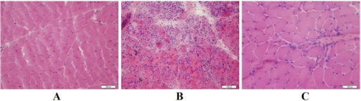 Muscle biopsy specimens stained with hematoxylin and eosin.(A) Normal control (×200). (B) Specimen from patient 11 exhibiting inflammatory cellular infiltration with necrotic and regenerative fibers (×200). (C) Specimen from patient 15 exhibiting mild nuclear transfer and regenerative fibers (×400).
