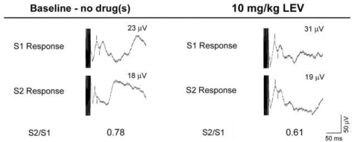Representative waveforms demonstrating the effect of LEV (10 mg/kg) on P20-N40 gating in DBA/2 mice. Waveforms on the left side represent pre-drug (i.e., baseline) responses to the first (S1) and second (S2) stimuli. Waveforms on the right side represent post-drug responses to the first and second stimuli. Burst response artifacts represent the auditory stimuli, and tic marks denote the P20-N40 auditory-evoked potentials. In these representative examples, injection of LEV alone reduced S2/S1 ratio relative to baseline by increasing S1 amplitude while not affecting S2 amplitude. LEV, levetiracetam.