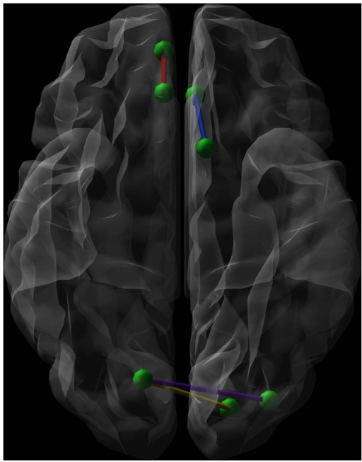 Graphical representation (axial view, radiological convention) of the network connections showing a significantly lower connectivity strength when comparing euthymic suicide attempters (SA) with euthymic non-attempters and healthy controls (HC). Green dots represent nodes. The blue line shows the connection between the left olfactory cortex and the left anterior cingulate gyrus, while the red line symbolizes the connection between the right medial orbital superior frontal gyrus and the right rectal gyrus. The purple line connects the right calcarine fissure and the left middle occipital gyrus. The yellow line forms the connection between the right calcarine fissure and both the left superior occipital gyrus.