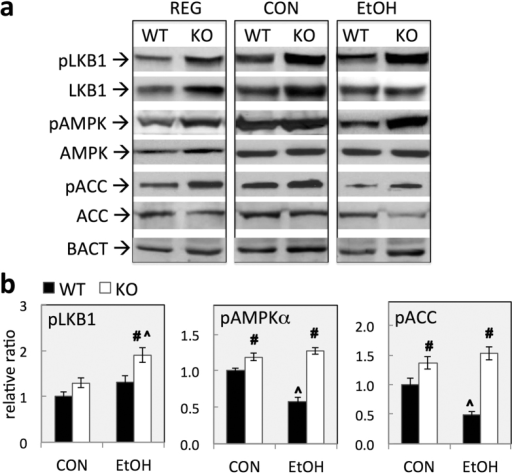 Constitutive activation of LKB1/AMPK pathway in GCLM KO livers.(a) Representative Western blotting of key players in LKB1-AMPK pathway in livers from WT and KO mice fed regular chow (REG), control (CON) or ethanol (EtOH) liquid diets for 6 wk. (b) Relative levels of phosphorylated proteins. Proteins were quantified by densitometric analysis of protein band intensity. Level of phosphorylated protein was calculated as the ratio to total proteins after normalization to β-actin (BACT). Relative levels are reported as ratios to control (CON-fed WT mice). Data represent mean ± SEM from 4 mice. #P < 0.05, vs. diet-matched WT mice. ^P < 0.05, vs. CON-fed mice of the same genotype.