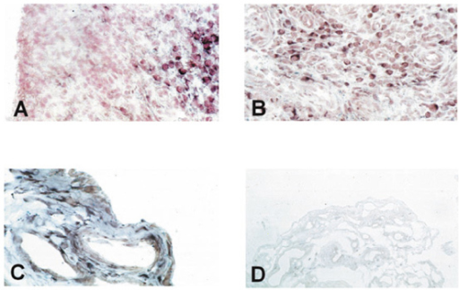 In situ hybridization on rheumatoid arthritis synovial				tissue shows only negligible expression of PTEN in the lining layer (A)				but abundant expression in the sublining layer (A, B). Normal synovium				consisting of only two to three cell layers of synovial cells showed clear				staining, both in the most superficial layers and in deeper regions (C).				The sense probe gave no specific staining (D).