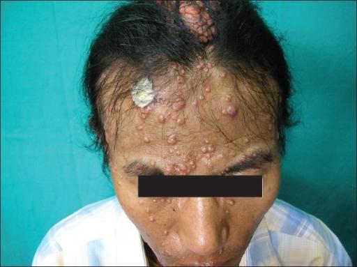 ... 0001: Disfi... Hiv Patient Face