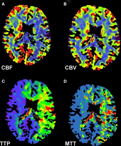 CT perfusion scan of the head demonstrates findings consistent with large ischemic penumbra. Decreased cerebral blood flow (A), preserved cerebral blood volume (B), and prolonged time to peak (C) and mean transit time (D) in the left middle cerebral and bilateral anterior cerebral artery distributions are shown.