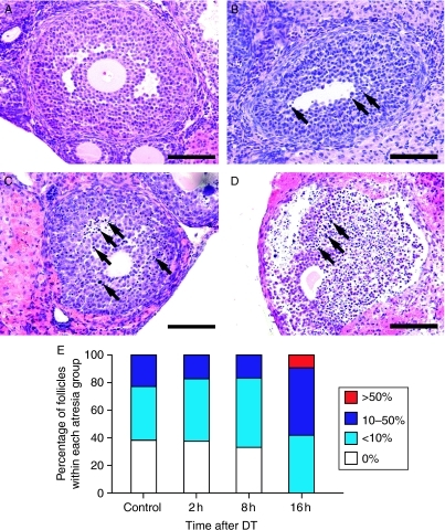 Micrographs of individual antral follicles illustrating different stages of follicle health and changes associated with treatment. (A) Healthy antral follicle with no pyknotic cells, (B) <10% pyknotic cells, (C) 10–50% pyknotic cells and (D) >50% pyknotic cells within the granulosa cell layer as observed 16 h post–DT. Black arrows indicate pyknotic cells. (E) Histogram showing percentages of antral follicles at different degrees of atresia in control ovaries and ovaries collected 2, 8 and 16 h post-DT. DT treatment adversely affected antral follicle health with a complete absence of pyknosis-free follicles by 16 h following treatment (P<0.05). Bar =50 μm.